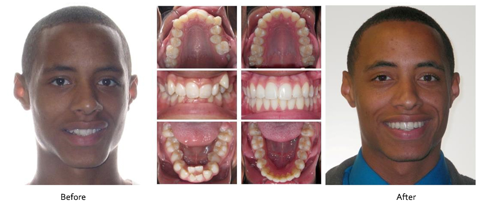 Before And After Robison Orthodontics Frederick Middletown Md