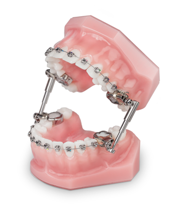 Herbst Appliance Robison Smiles Orthodontics Frederick Middletown Md
