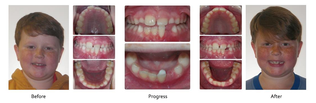 Before and After - Robison Smiles Orthodontics | Frederick