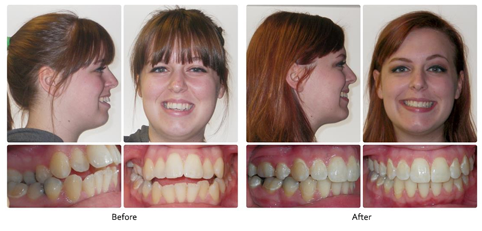 Before and After - Robison Smiles Orthodontics | Frederick Middletown MD