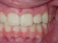 posterior crossbite after